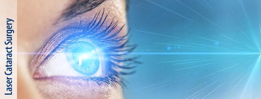 slider_laser_cataract_surgery_3